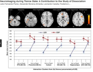 Neuroimaging During Trance State